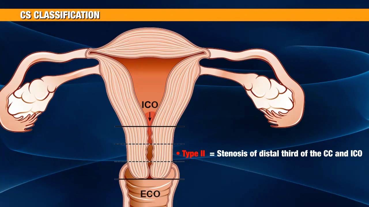 Challenging The Cervix Strategies To Overcome The -7001
