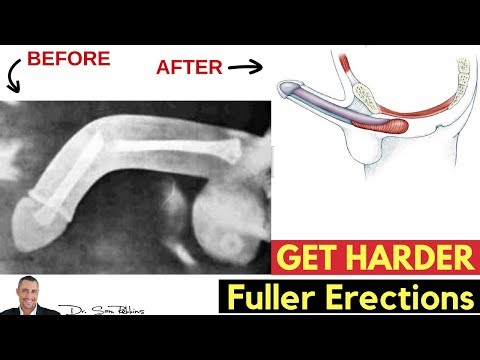 ♂️ 5 Simple & Clinically Proven Tips To Get Harder, Fuller & Bigger Erections