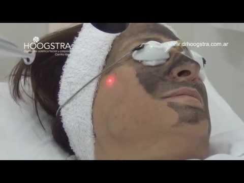 ¿Qué es el Peeling de Carbonilla? Testimonios (14033)