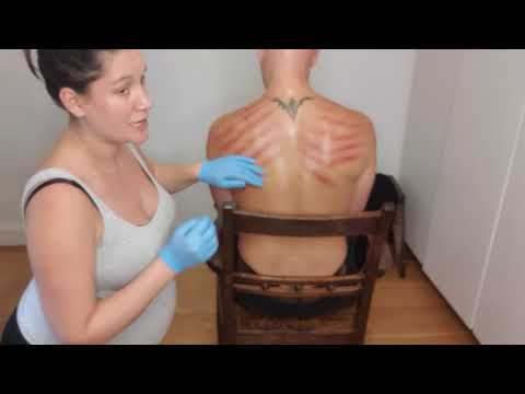 Gua sha to neck and back with a coin