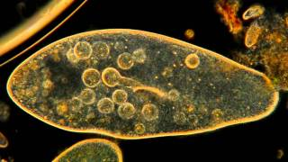 Repeat youtube video Amazing Microscopic HD Video! Paramecium Feeding!!