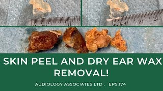 SKIN PEEL AND DRY EAR WAX REMOVAL - EP 174