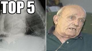 TOP 5 - Živých stvoření, nalezených uvnitř těla