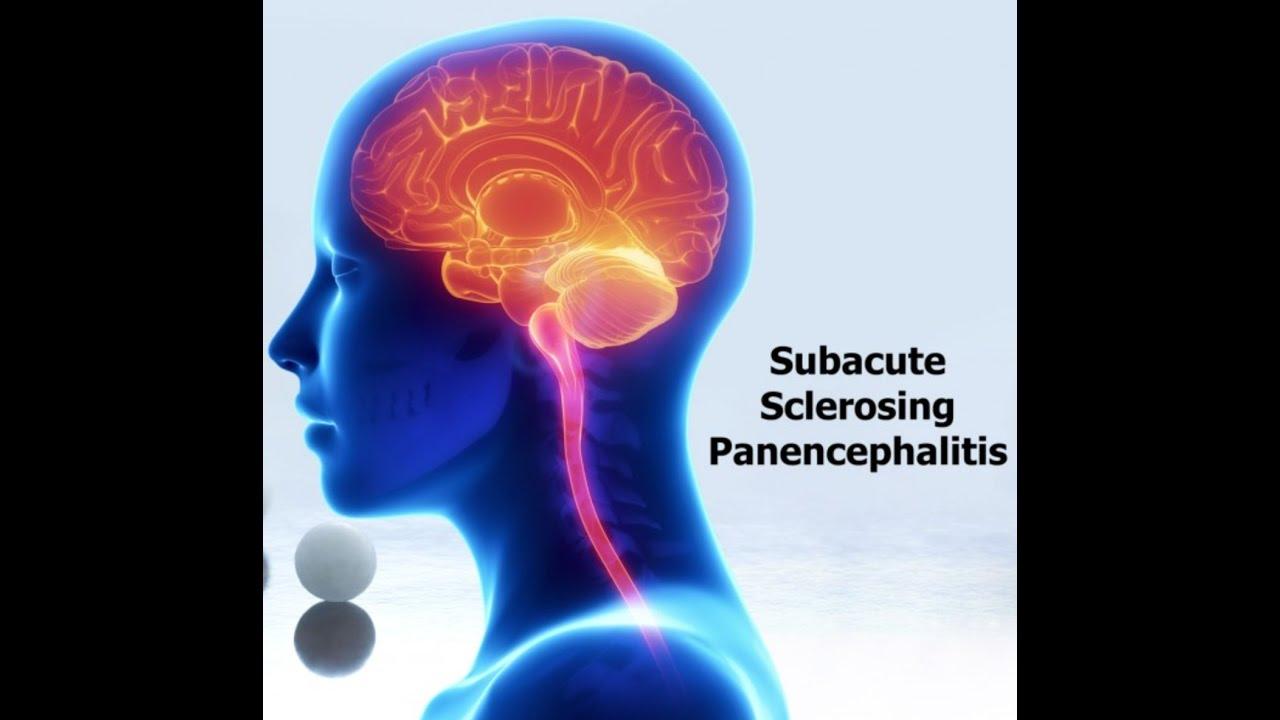 Subacute sclerosing panencepha...