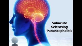 Lyrics esclerosante es ¿qué panencefalitis la