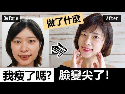 【美容#12】我到韓國打肉毒瘦臉針了!會痛嗎?有什麼副作用?