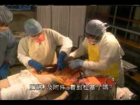 Man Autopsy