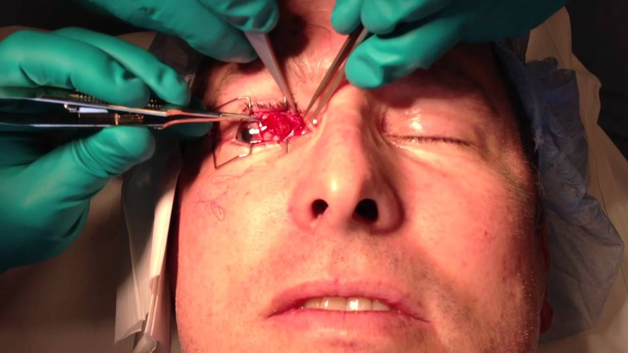 Adult Strabismus Surgery 74