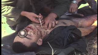 Battalion Surgeon Carrara performs a tracheotomy on a badly wounded soldier of US...HD Stock Footage
