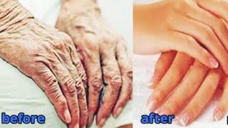 Сделайте руки моложе на 10 лет Омоложение кожи рук уход дома