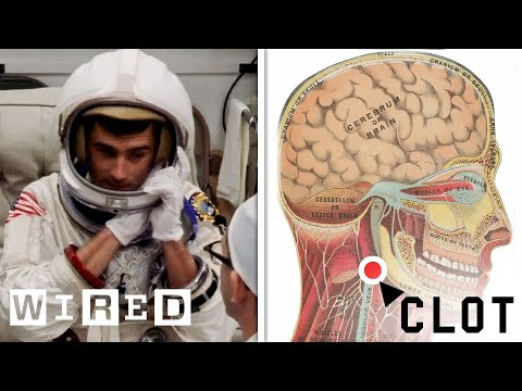 NASA Flight Surgeon Explains How to Treat a Blood Clot in Space | WIRED