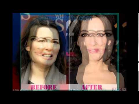 Nigella Lawson Plastic Surgery Before And After Photos