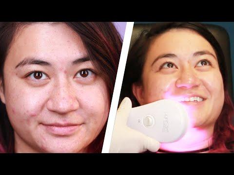 hqdefault - Dermatologist Acne Wellesley Massachusetts