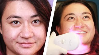 Women Find The Cause Of Their Acne