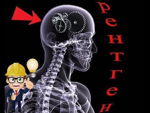 Принцип работы рентгеновского аппарата. Рентгеновское излучение