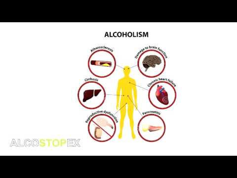 Alcostopex – Solution For Alcohol Abuse
