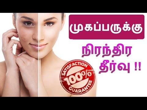 100 % முகப்பருக்கு சிறந்த எளிய தீர்வு ! How To Cure Pimples At Home ?