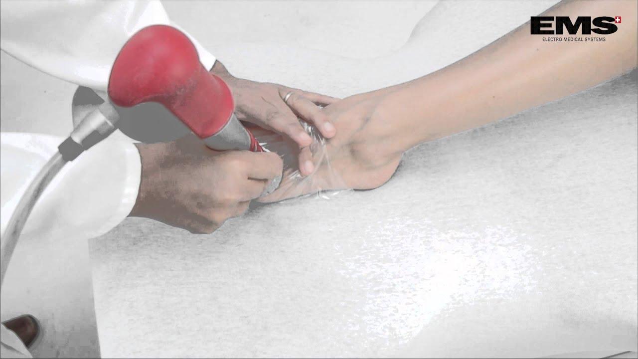 artrózis sokkhullám kezelési áttekintés)