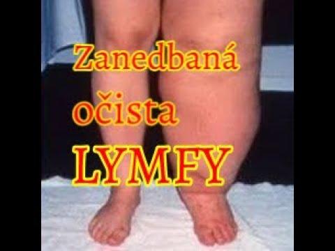 Jak Očistit Lymfu - Komplet návod (Díl 2. Očista těla)