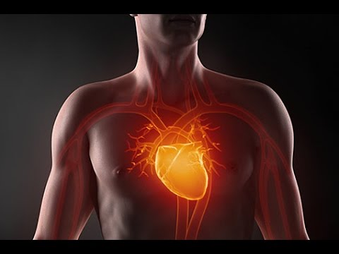 Как происходит инфаркт сердца