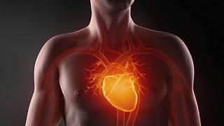 Общие симптомы и первые признаки инфаркта у мужчин