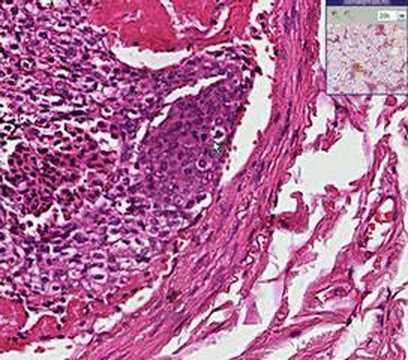 Histopathology Lung Tumor Emboli