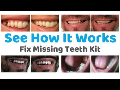 Fix Missing Teeth Kit – KG Dentalcare