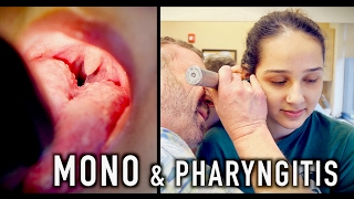 MONO & PHARYNGITIS (Crazy Story) | Dr. Paul