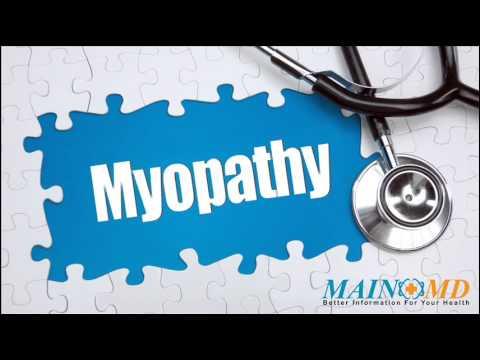 Myopathy ¦ Treatment and Symptoms