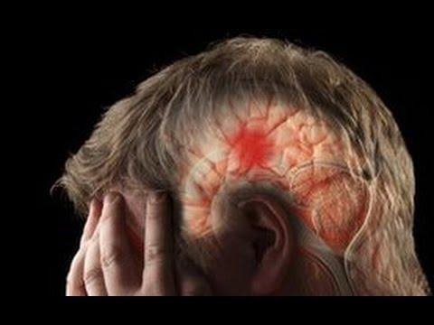 Image result for pecah pembuluh darah di otak