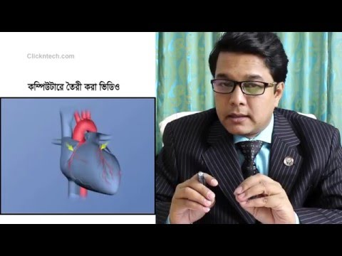 How to spot potential heart attack ? ( Bangla )