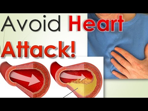 Why our Heart Vein get Blocked! Avoid Heart Attack!
