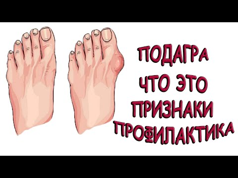 Подагра (Косточка) / Признаки и профилактика / 7 СПОСОБОВ ПРОФИЛАКТИКИ