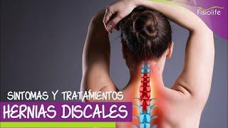 Síntomas y Tratamiento Fisioterapéutico de la Hernia de Disco | FISIOLIFE