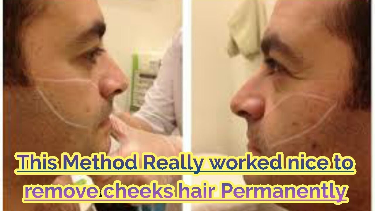 Facial hair removal men remarkable