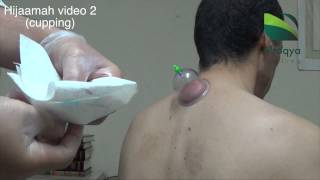 ALRUQYA | HIJAMMAH (CUPPING) | MAKING INCISIONS | PART 2