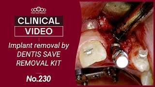 Implant removal by DENTIS SAVE REMOVAL KIT