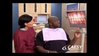 River Road Dental: Gum Disease Gingivitis