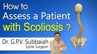 How  to Assess a patient with Scoliosis? | Dr. G.P.V.Subbaiah …