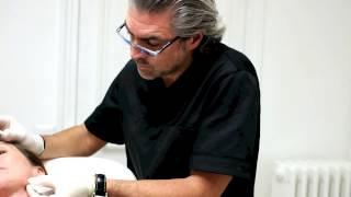 Injection de RADIESSE à l'ovale du visage par le Docteur Thierry Lafitte medecin esthetique paris