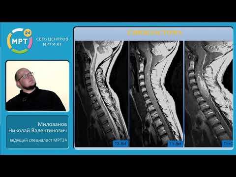 МРТ диагностика опухолей позвоночника