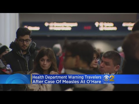 Potential Measles Exposure At O'Hare Airport