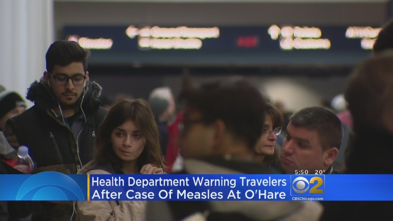 2 new measles exposure locations released after more cases confirmed in Kansas City