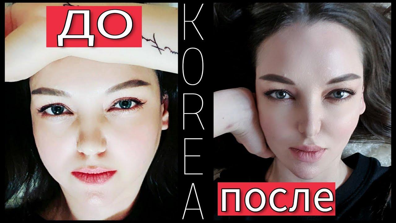 Про мои пластические операции в Корее;)