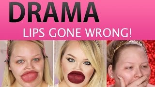 NIKKIE TUTORIALS BOTCHED PLASTIC SURGERY?