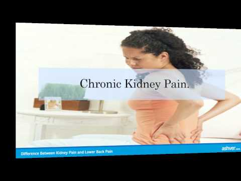 Difference Between Kidney Pain and Lower Back Pain