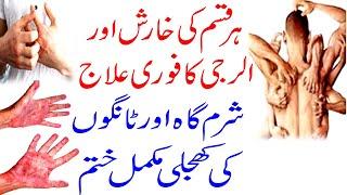 Kharish Ka Ilaj 2020 Urdu, Hindi , Itching In Private Area, Treatment | Khujli Wazifa|Shehzad Turabi