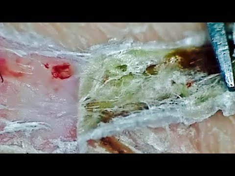 Magnified Scab Picking 4