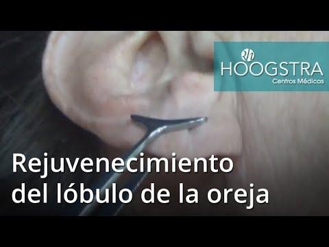 Rejuvenecimiento del lóbulo de la oreja (18074)