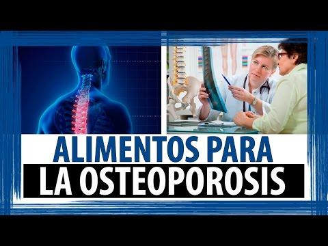 Dieta para la osteoporosis alimentos para la osteoporosis asurekazani - Alimentos para la osteoporosis ...